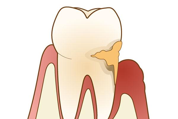 青森県 青森市緑 ミドリデンタルクリニック レーザーでできる歯科治療 歯周病の治療