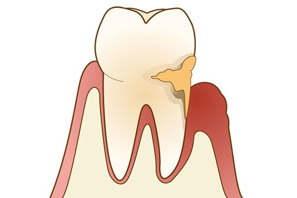 青森県 青森市緑 ミドリデンタルクリニック 歯周病治療 歯周病の原因